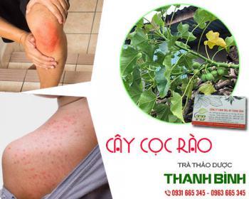 Mua bán cây cọc rào tại quận 7 hỗ trợ điều trị mẩn ngứa ngoài da rất tốt